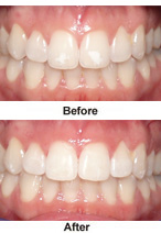 Non-invasive Restorative Dentistry