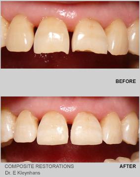 Composite Restorations
