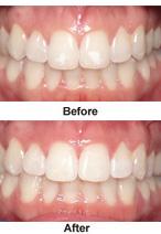 Non-invasive Restorative Dentistry