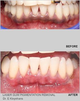 Laser gum pigmentation removal